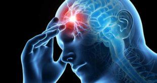 2147906-migrain-1614279952.jpg